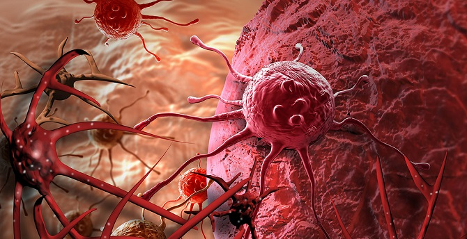 symptoms of cancer