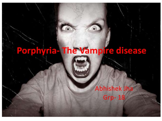 Vampire syndrome